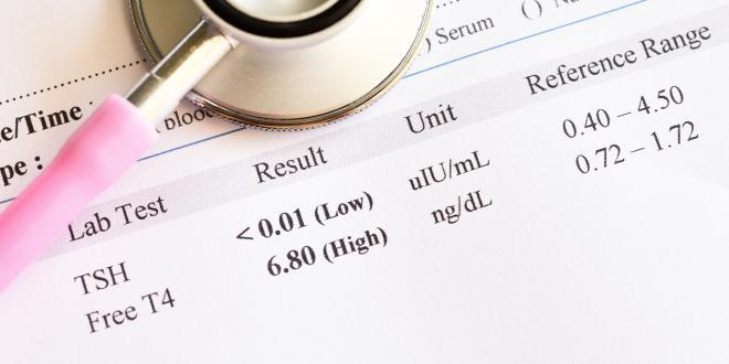 Abnormal thyroid hormone test result.